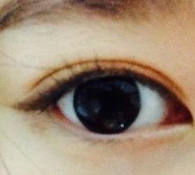 비절개 눈매교정 191일후
