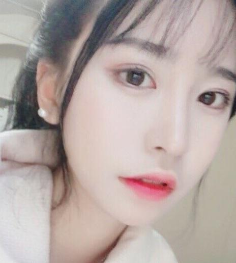 대박 후기~ 비절개눈매교정