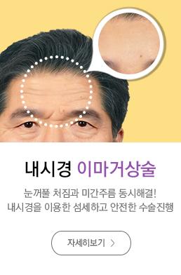 내시경이마거상술
