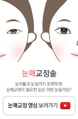 눈매교정술