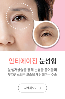 안티에이징눈성형