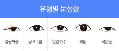 유형별 눈성형